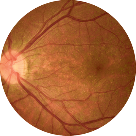Fundus image of the retina in early-stage BCD patients