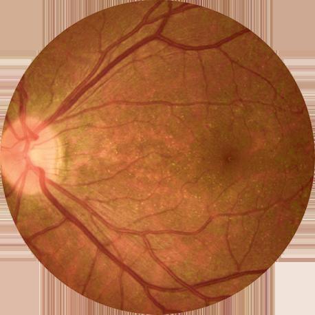 早期BCD患者视网膜的眼底图像。