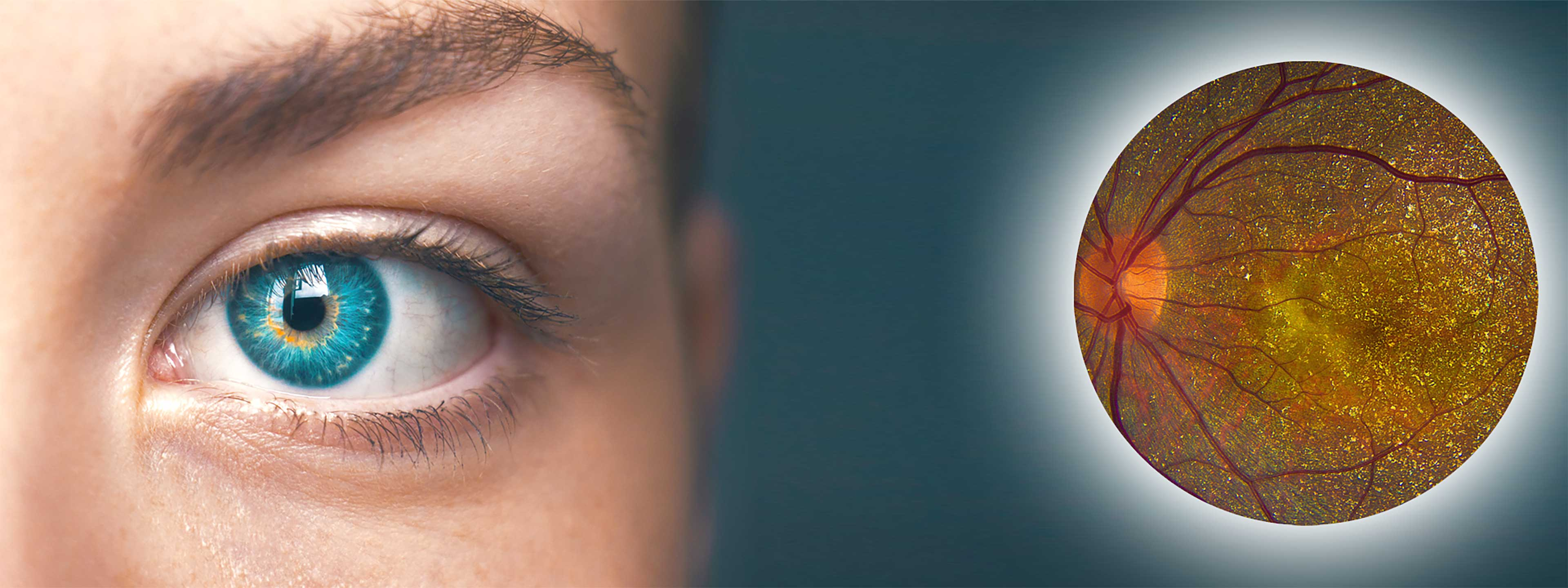 BCD is an often-misdiagnosed retinal disease.
